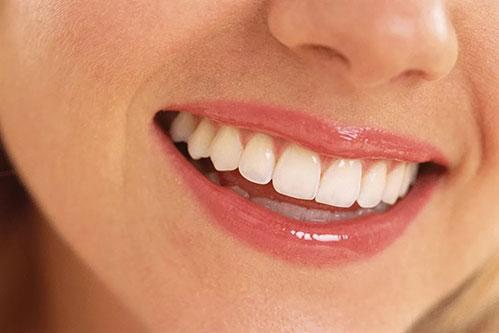 Улыбка зубы